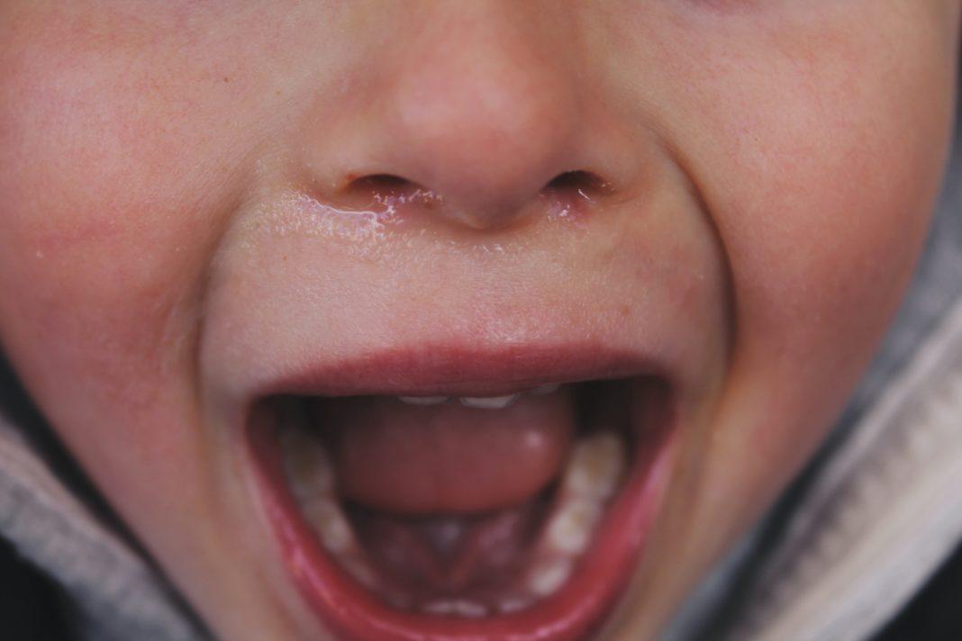 Zahnschmerzen durch Stress