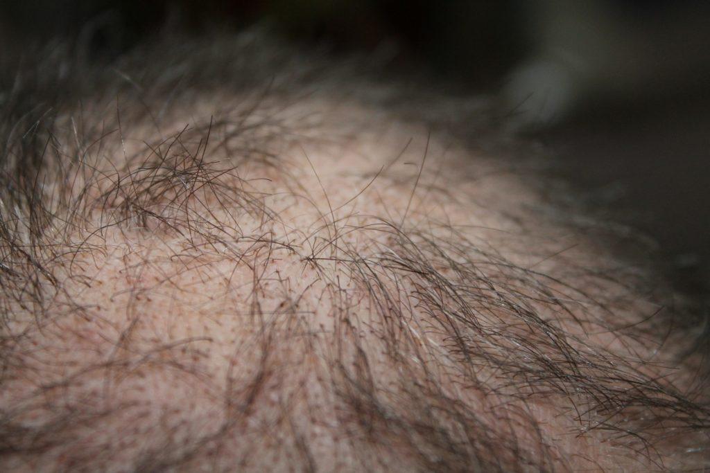Mangelernährung - Haarausfall